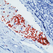 Immunohistochemistry (Formalin/PFA-fixed paraffin-embedded sections) - CD42b antibody [42C01], prediluted (ab74449)
