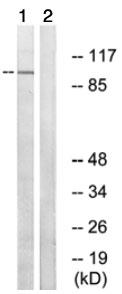 Western blot - ARHGAP17 antibody (ab74454)