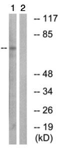 Western blot - ARHGAP22 antibody (ab74455)