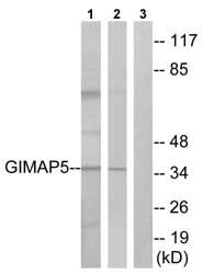 Western blot - GIMAP5 antibody (ab74575)