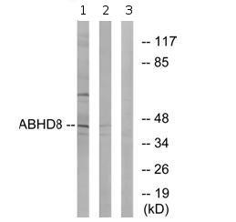 Western blot - ABHD8 antibody (ab74682)