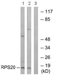 Western blot - RPS20 antibody (ab74700)