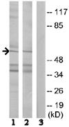 Western blot - ZNF187 antibody (ab74708)