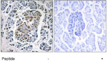Immunohistochemistry (Formalin/PFA-fixed paraffin-embedded sections) - SSBP1 antibody (ab74710)