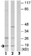 Western blot - SSBP1 antibody (ab74710)