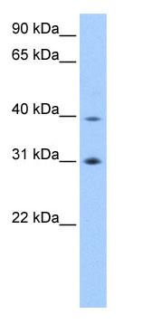 Western blot - EIF3S3 antibody (ab74720)