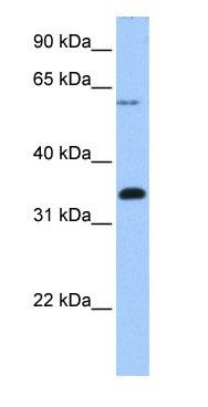 Western blot - FBXO16 antibody (ab74722)