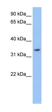 Western blot - LACTB antibody (ab74723)