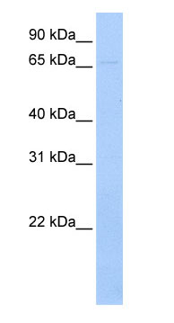 Western blot - Ribophorin I antibody (ab74725)
