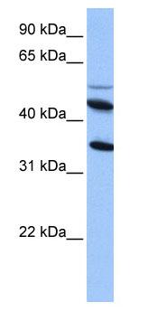 Western blot - IL13 receptor alpha 2 antibody (ab74730)