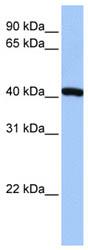 Western blot - FTSJ1 antibody (ab74776)