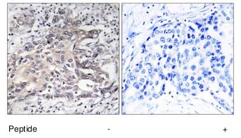 Immunohistochemistry (Formalin/PFA-fixed paraffin-embedded sections) - CYP4X1 antibody (ab74810)