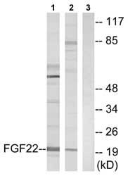 Western blot - FGF22 antibody (ab74860)