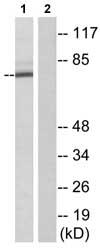 Western blot - GBP1 antibody (ab74864)
