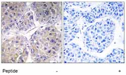 Immunohistochemistry (Formalin/PFA-fixed paraffin-embedded sections) - SLC27A5 antibody (ab74869)
