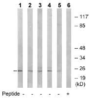 Western blot - NDUFB10 antibody (ab74940)