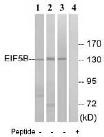 Western blot - EIF5B antibody (ab74958)
