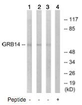 Western blot - GRB 14 antibody (ab74961)