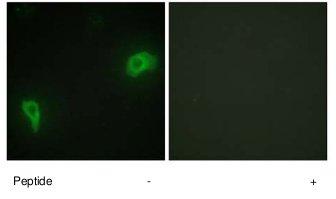 Immunocytochemistry/ Immunofluorescence - DOK7 antibody (ab75049)