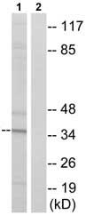 Western blot - Acyl-coenzyme A Thioesterase 8 antibody (ab75070)