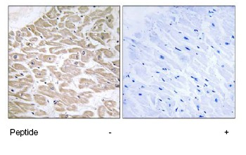 Immunohistochemistry (Formalin/PFA-fixed paraffin-embedded sections) - RRAD antibody (ab75100)