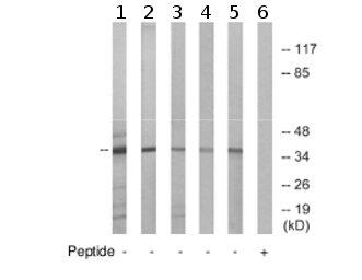 Western blot - GPCR GPR86 antibody (ab75103)