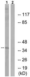 Western blot - A4GNT antibody (ab75111)