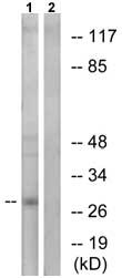 Western blot - APOA1BP antibody (ab75114)