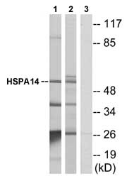 Western blot - HSPA14 antibody (ab75132)