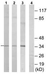 Western blot - VN1R3 antibody (ab75136)