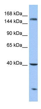 Western blot - Carboxypeptidase D antibody (ab75140)
