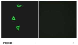Immunocytochemistry/ Immunofluorescence - BDKRB1 antibody (ab75148)