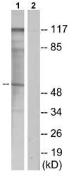 Western blot - Parathyroid Hormone Receptor 1 antibody (ab75150)