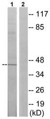 Western blot - CCKAR antibody (ab75153)