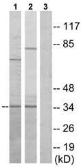 Western blot - CysLT2 antibody (ab75160)