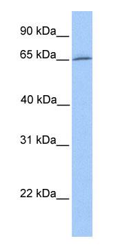 Western blot - Dynein axonemal intermediate chain 1 antibody (ab75162)