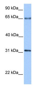 Western blot - ZNF394 antibody (ab75166)