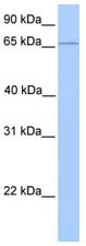 Western blot - CLCNKA antibody (ab75175)