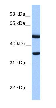 Western blot - DNAJB6 antibody (ab75196)