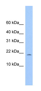 Western blot - MORN4 antibody (ab75202)