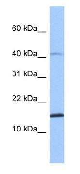Western blot - SPAG11B antibody (ab75204)