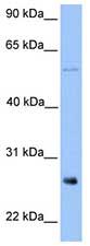 Western blot - METTL7B antibody (ab75217)