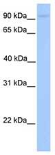 Western blot - AGBL5 antibody (ab75219)
