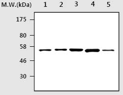 Western blot - RIP2 antibody [AF28D3] (ab75257)