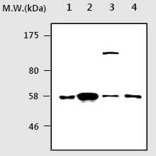 Western blot - SMAD1+SMAD5 antibody [AF10B7] (ab75273)