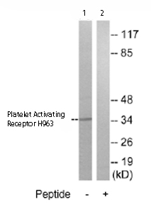 Western blot - Platelet Activating Receptor H963 antibody (ab75426)