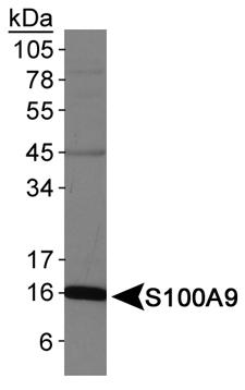 Western blot - S100A9 antibody (ab75478)