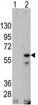 Western blot - PINK1 antibody [38CT18.7] (ab75487)