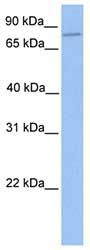 Western blot - ZNF555  antibody (ab75496)