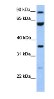 Western blot - CCDC7 antibody (ab75597)